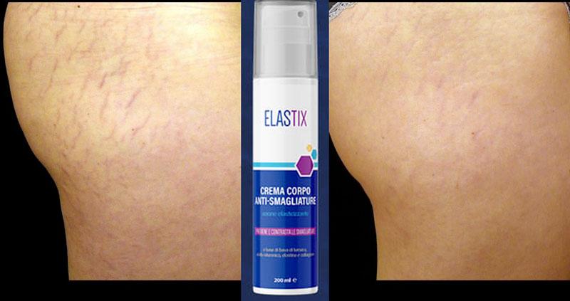 Benefici di Elastix